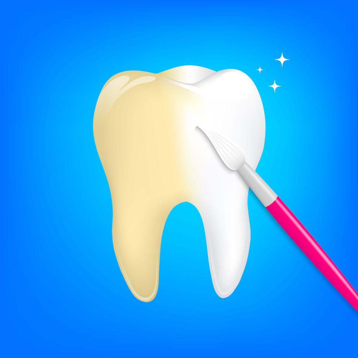 Puriwhite za izbeljivanje zuba